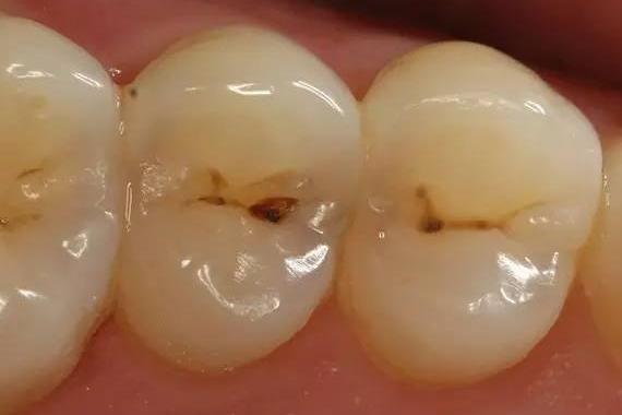 蛀牙怎么办_蛀牙不补怎么防止恶化_杀蛀牙虫偏方