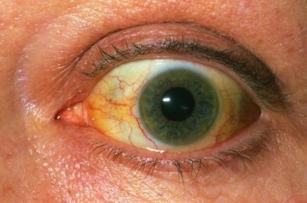 七个月的孩子两边的眼白上有灰黑色圆点是怎么回事