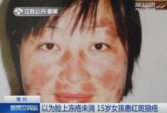 常州:15岁女孩患红斑狼疮 以为脸上冻疮未消