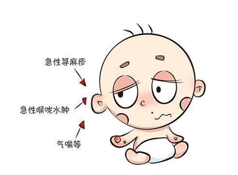 呼吸道过敏:宝会有反复的气喘,咳嗽与喉咙发炎,哮喘等.