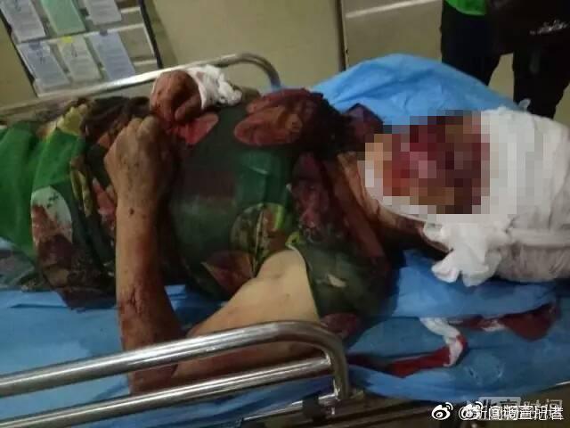 永州一妇女惨遭两条狼狗撕咬 大半头皮被咬掉! - 周公乐 - xinhua8848 的博客